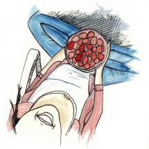 strawbs2_illustration_freewildsoul